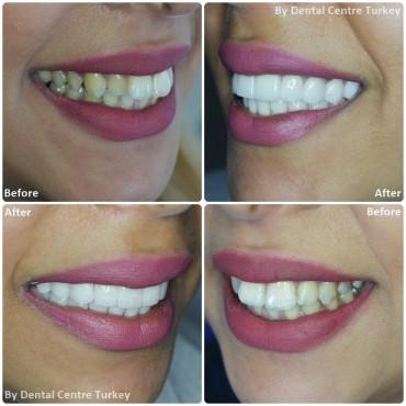Dental in Fethiye