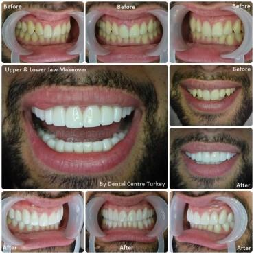 Dentist Fethiye Smile Makeover