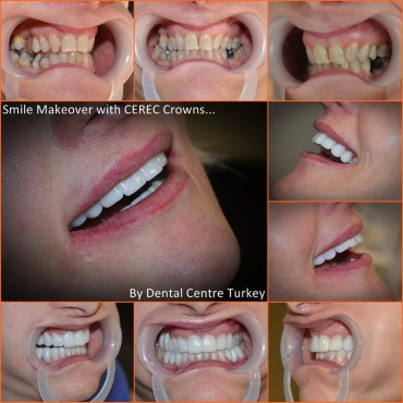dentistry in fethiye