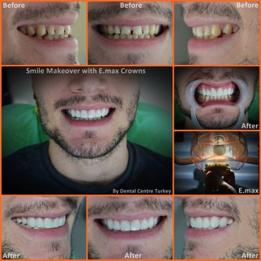 implant dentist fethiye
