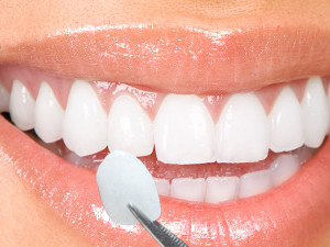 dental veneers fethiye