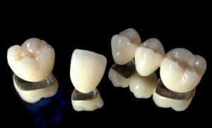 metal-porcelain-crowns-fethiye